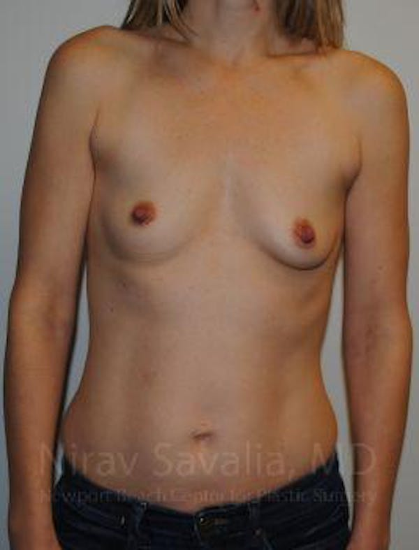 Breast Augmentation Gallery - Patient 1655580 - Image 1