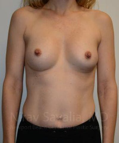 Breast Augmentation Gallery - Patient 1655580 - Image 2