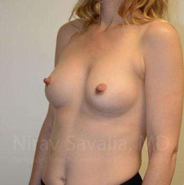Breast Augmentation Gallery - Patient 1655580 - Image 8
