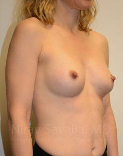Breast Augmentation Gallery - Patient 1655580 - Image 10