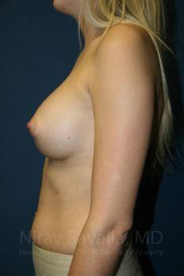 Breast Augmentation Gallery - Patient 1655581 - Image 4