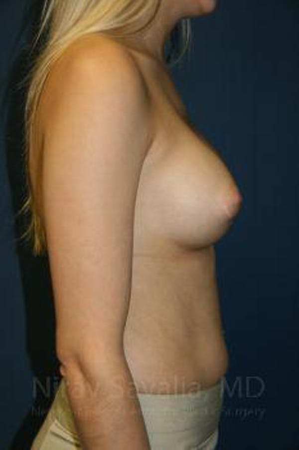 Breast Augmentation Gallery - Patient 1655581 - Image 6