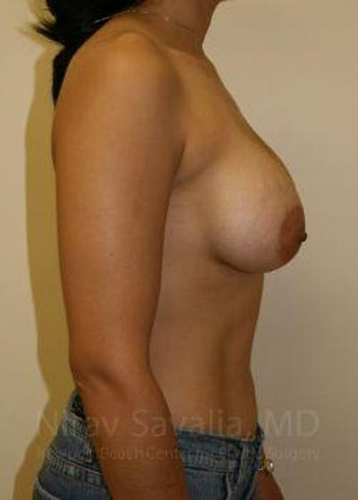 Breast Augmentation Gallery - Patient 1655582 - Image 4