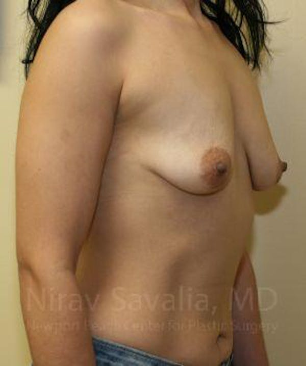 Breast Augmentation Gallery - Patient 1655582 - Image 7