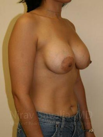 Breast Augmentation Gallery - Patient 1655582 - Image 8