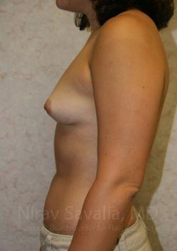 Breast Augmentation Gallery - Patient 1655583 - Image 5