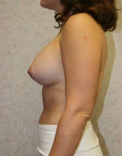 Breast Augmentation Gallery - Patient 1655583 - Image 6