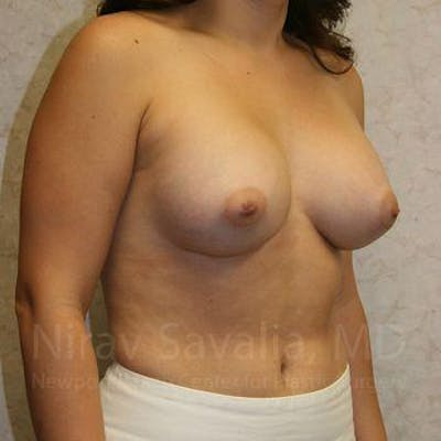 Breast Augmentation Gallery - Patient 1655583 - Image 8