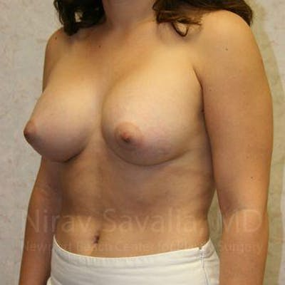 Breast Augmentation Gallery - Patient 1655583 - Image 10