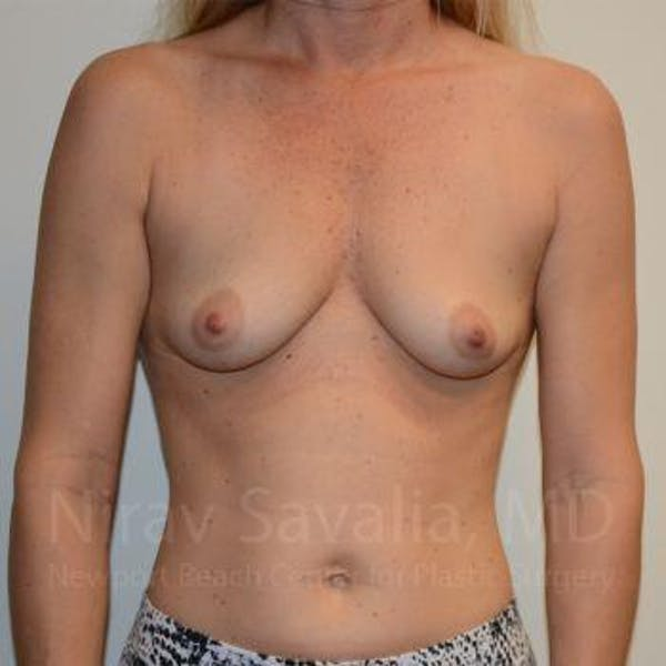 Breast Augmentation Gallery - Patient 1655584 - Image 1