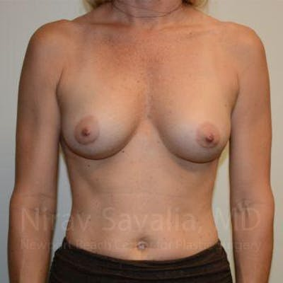 Breast Augmentation Gallery - Patient 1655584 - Image 2