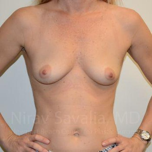 Breast Augmentation Gallery - Patient 1655584 - Image 3