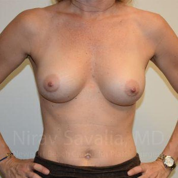 Breast Augmentation Gallery - Patient 1655584 - Image 4