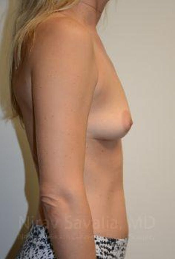 Breast Augmentation Gallery - Patient 1655584 - Image 7