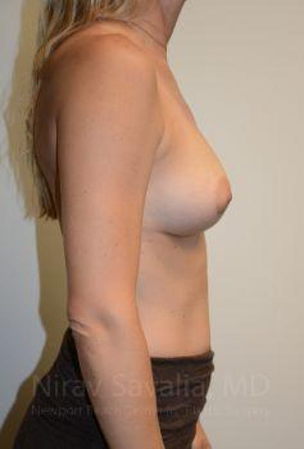 Breast Augmentation Gallery - Patient 1655584 - Image 8