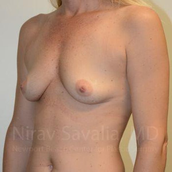 Breast Augmentation Gallery - Patient 1655584 - Image 9