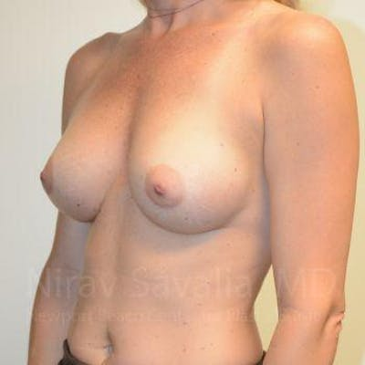 Breast Augmentation Gallery - Patient 1655584 - Image 10