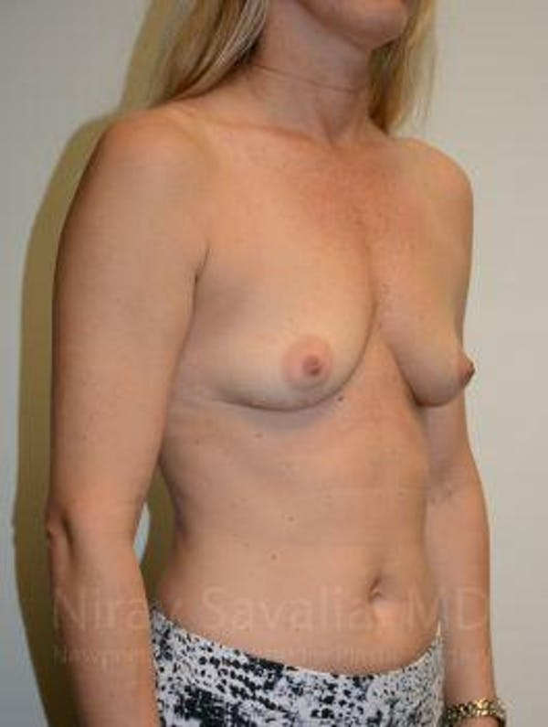 Breast Augmentation Gallery - Patient 1655584 - Image 11