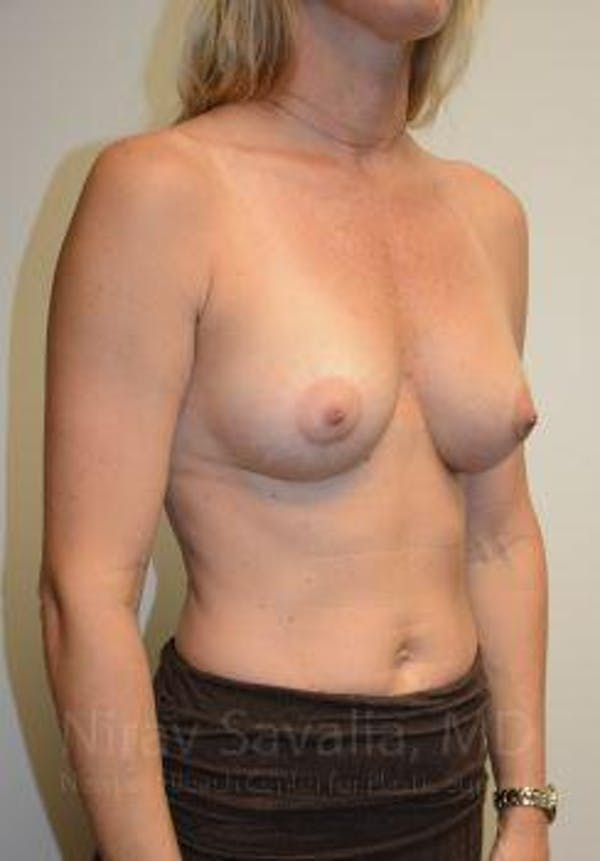 Breast Augmentation Gallery - Patient 1655584 - Image 12
