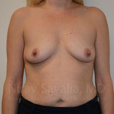 Breast Augmentation Gallery - Patient 1655585 - Image 1