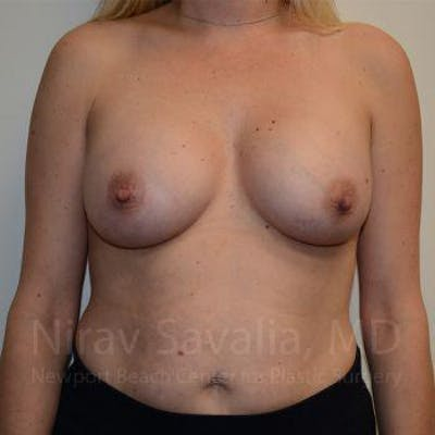 Breast Augmentation Gallery - Patient 1655585 - Image 2
