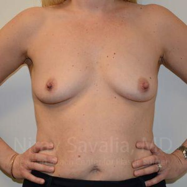 Breast Augmentation Gallery - Patient 1655585 - Image 3