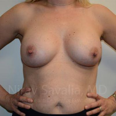Breast Augmentation Gallery - Patient 1655585 - Image 4