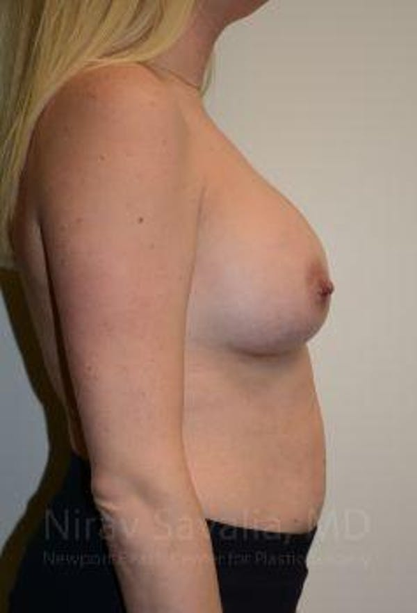 Breast Augmentation Gallery - Patient 1655585 - Image 6