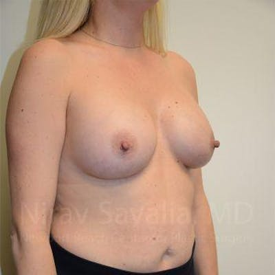 Breast Augmentation Gallery - Patient 1655585 - Image 8