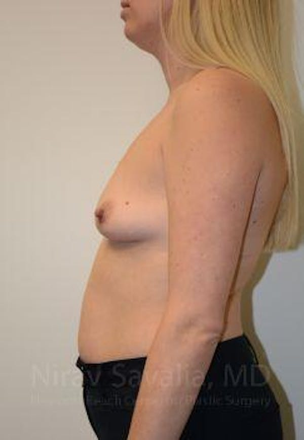 Breast Augmentation Gallery - Patient 1655585 - Image 9