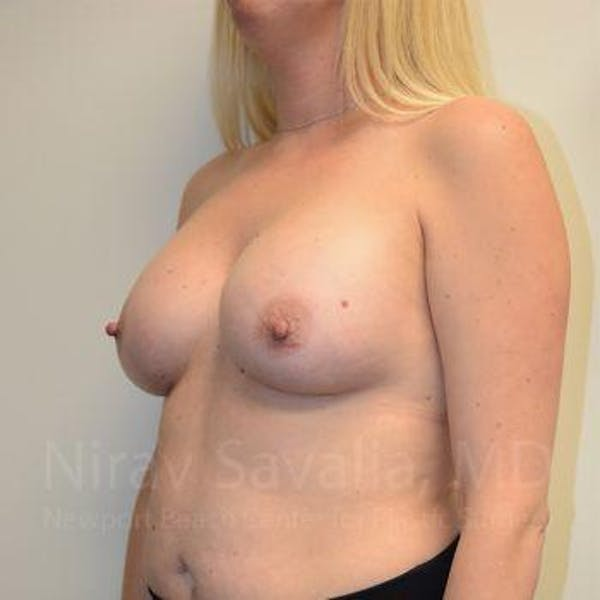 Breast Augmentation Gallery - Patient 1655585 - Image 12