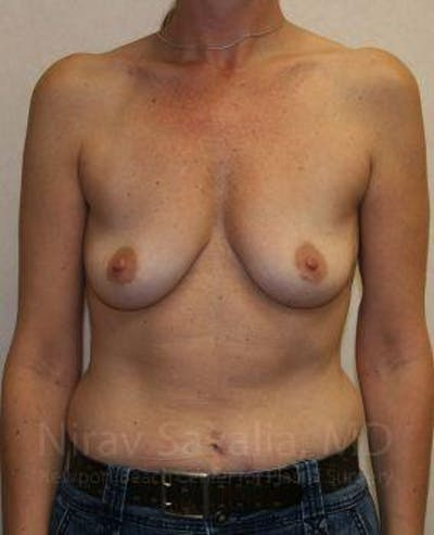 Breast Augmentation Gallery - Patient 1655587 - Image 1