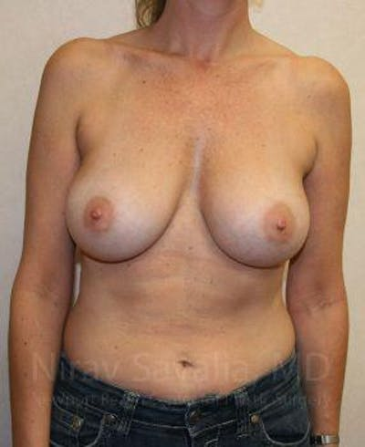 Breast Augmentation Gallery - Patient 1655587 - Image 2