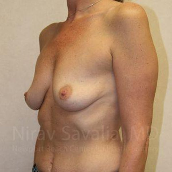 Breast Augmentation Gallery - Patient 1655587 - Image 5