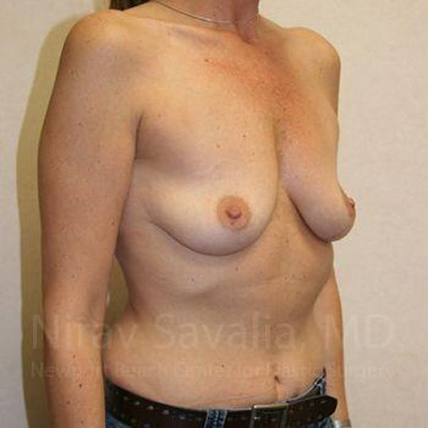 Breast Augmentation Gallery - Patient 1655587 - Image 7