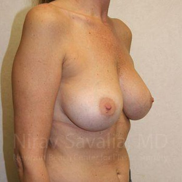 Breast Augmentation Gallery - Patient 1655587 - Image 8
