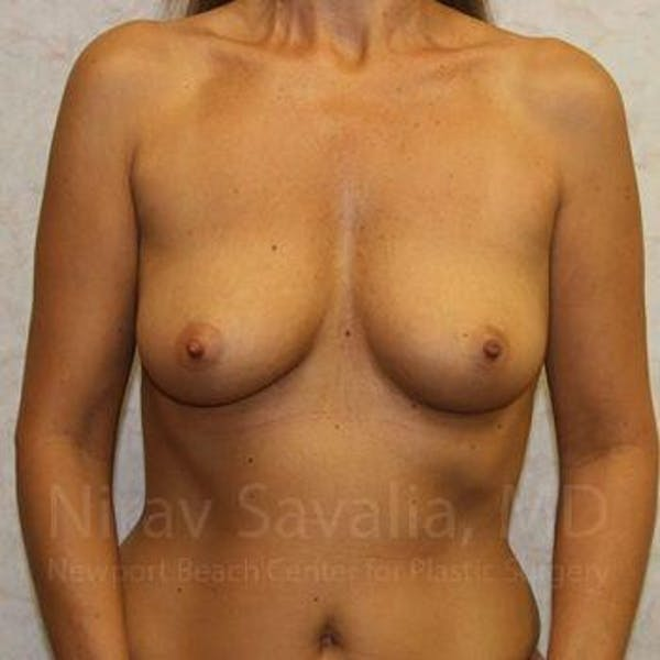 Breast Augmentation Gallery - Patient 1655588 - Image 1