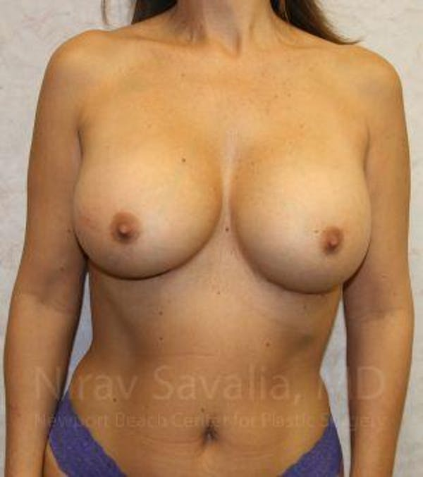 Breast Augmentation Gallery - Patient 1655588 - Image 2