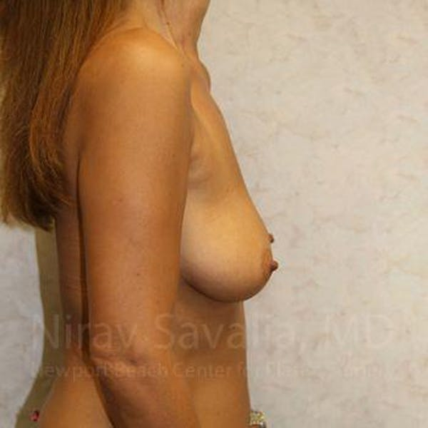 Breast Augmentation Gallery - Patient 1655588 - Image 3