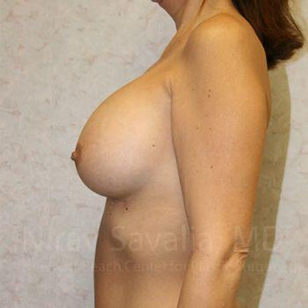 Breast Augmentation Gallery - Patient 1655588 - Image 6