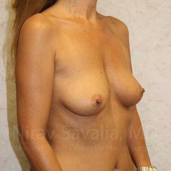 Breast Augmentation Gallery - Patient 1655588 - Image 9