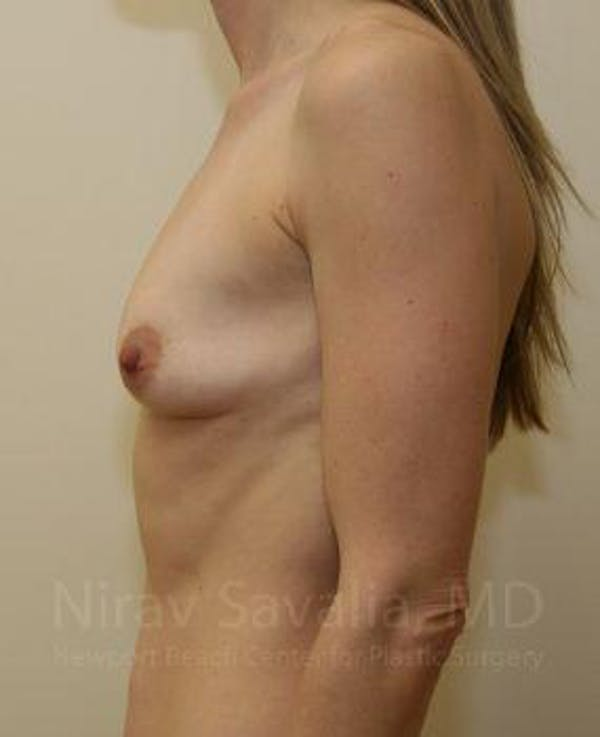 Breast Augmentation Gallery - Patient 1655589 - Image 5