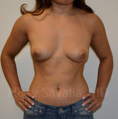 Breast Augmentation Gallery - Patient 1655590 - Image 1
