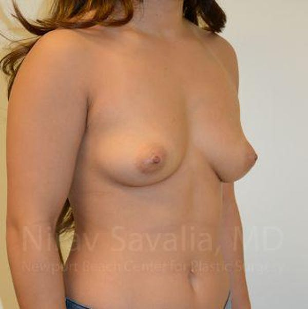 Breast Augmentation Gallery - Patient 1655590 - Image 9