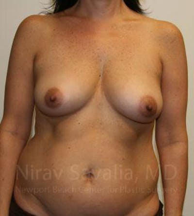Breast Augmentation Gallery - Patient 1655591 - Image 1