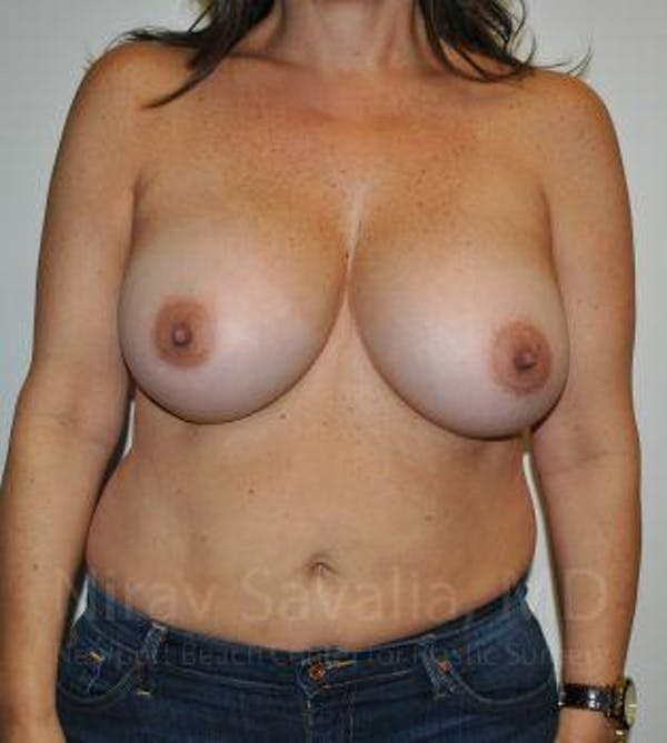 Breast Augmentation Gallery - Patient 1655591 - Image 2