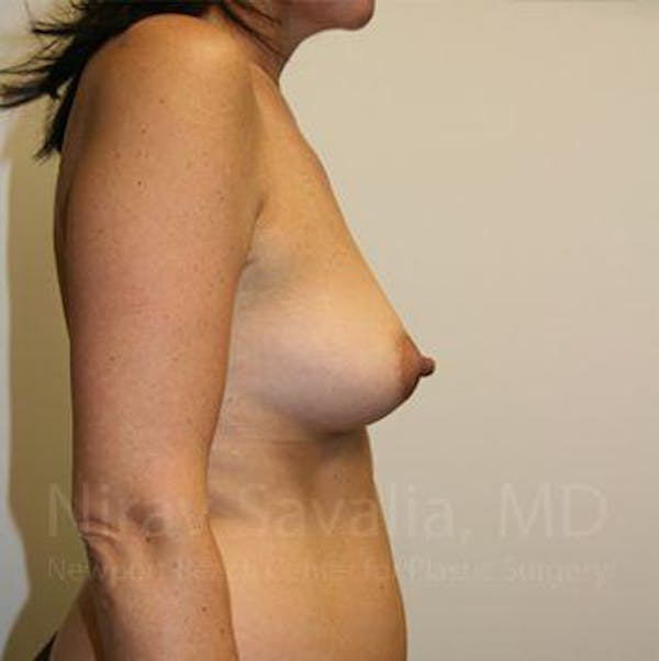 Breast Augmentation Gallery - Patient 1655591 - Image 5