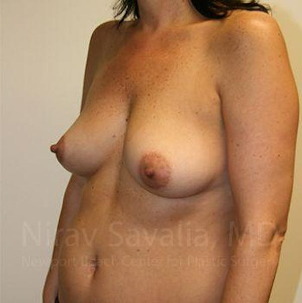Breast Augmentation Gallery - Patient 1655591 - Image 7
