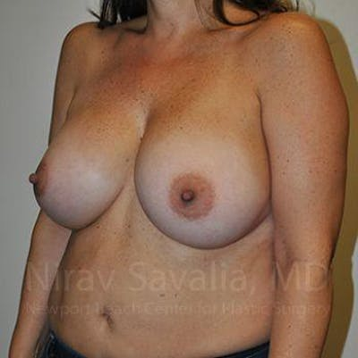 Breast Augmentation Gallery - Patient 1655591 - Image 8