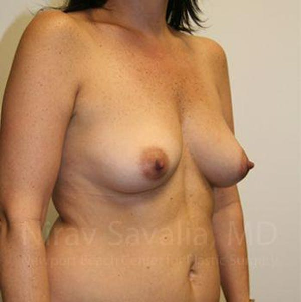 Breast Augmentation Gallery - Patient 1655591 - Image 9